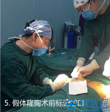 假体丰胸术前标记切口