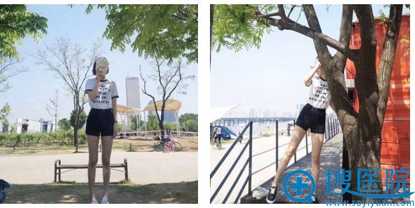 重庆西南医院王量腰腹部吸脂案例四个月反馈图片