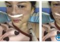 泉州海峡郭永军医生通过鼻综合隆鼻成功帮我走出了猪鼻子的阴影