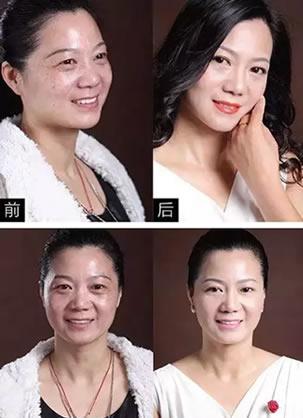 北京京民(原钓鱼台)医院郭建玲为50岁我做超声刀3月后的变化