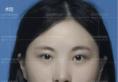 郑州东方整形长效玻尿酸丰下巴加肉毒素联合治疗 打造精致脸型