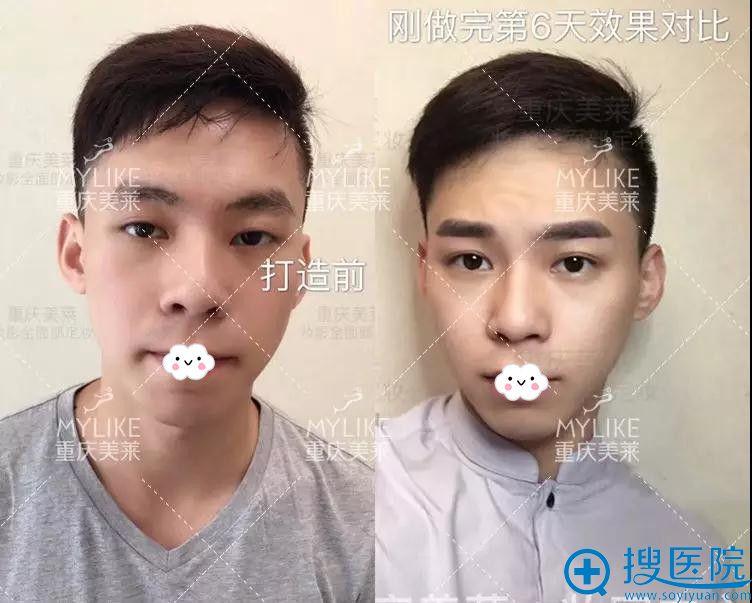 男生纹眉前后效果对比