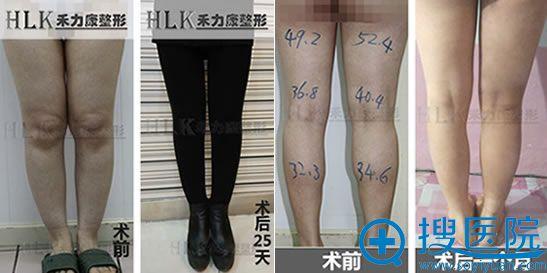 北京禾力康摩登美腿真人案例