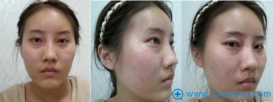 韩国必妩整形医院颧骨面部轮廓手术前照片