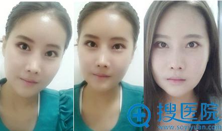韩国必妩面部轮廓术后一个月