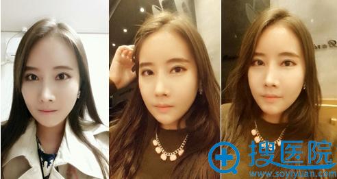韩国必妩整形轮廓+鹰钩鼻+双眼皮开眼角修复术后3个月