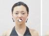 杭州华山连天美抗衰真人秀:朱琳线雕+玻尿酸打造迷人少女脸