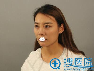 重庆联合丽格填充全脸真人案例
