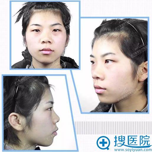 面部整形手术前全方位拍照