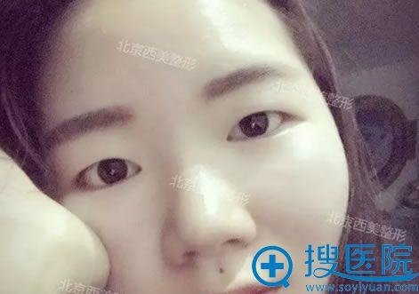 手术前的单眼皮眼睛