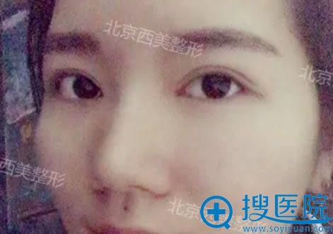 在北京西美做完双眼皮10天效果