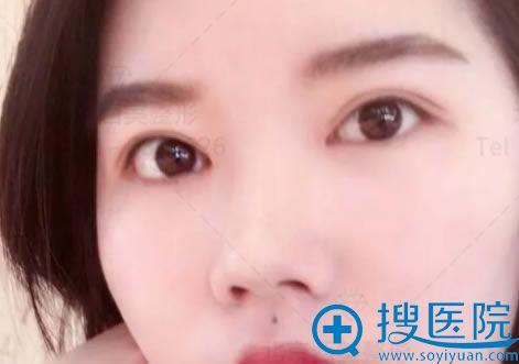 北京西美刘野医生双眼皮案例