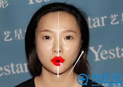 艺兴整容面部线雕半张脸的效果