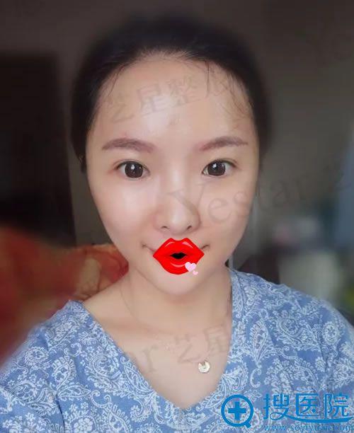 面部线雕和注射填充术后1天效果