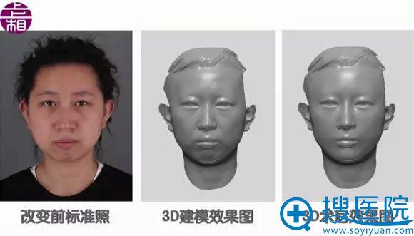 北京上上相术前3D模型效果图