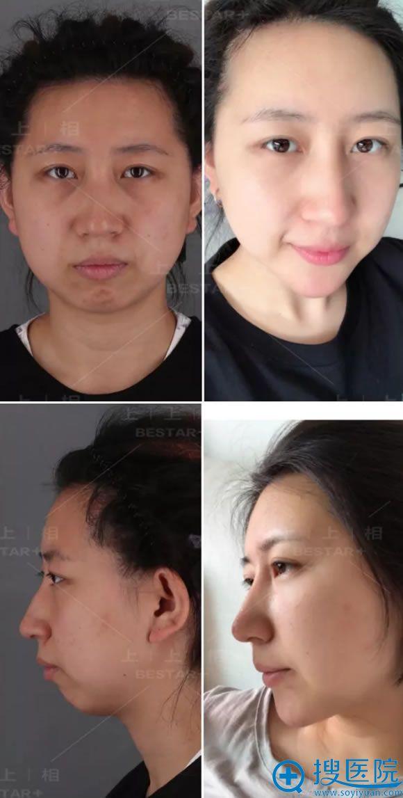 北京上上相脂肪填充案例90天对比图