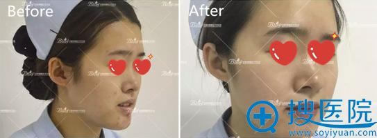 皮秒激光去痘印术前术后效果对比