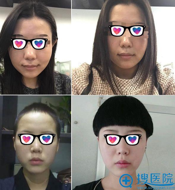 北京中加科洋注射瘦脸针案例