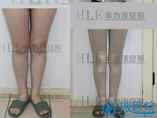做完大腿吸脂前后效果对比图