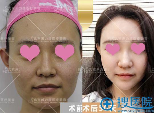 禾力康做自体脂肪填充全脸案例对比图