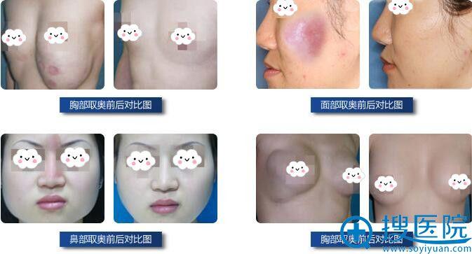 美妍胸部、面部、鼻部奥美定取出对比