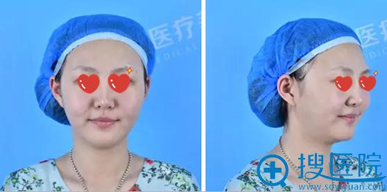 洛阳协和线雕+玻尿酸填充瘦脸术前照