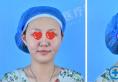 洛阳协和瘦脸真实案例:全面部线雕+玻尿酸填充轻松打造小V脸