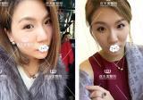 不知玻尿酸哪个牌子效果好?在南京连天美面部填充效果展示