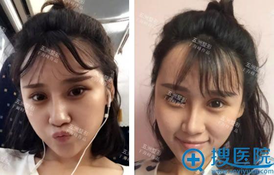 在北京五洲做面部综合20天效果