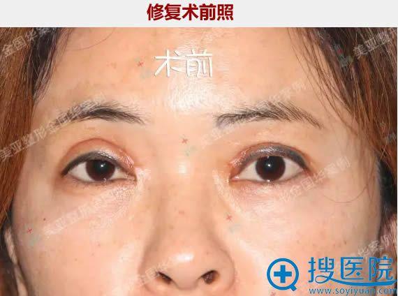 双眼皮失败修复前的图片