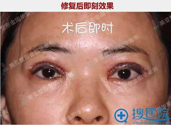 金国华医生给我做完双眼皮二次修复后即刻效果