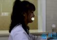 在义乌张小红做鼻子30天 看鼻王魏广运肋软骨隆鼻术后效果如何