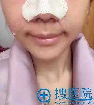 在济南海峡做隆鼻手术1天效果
