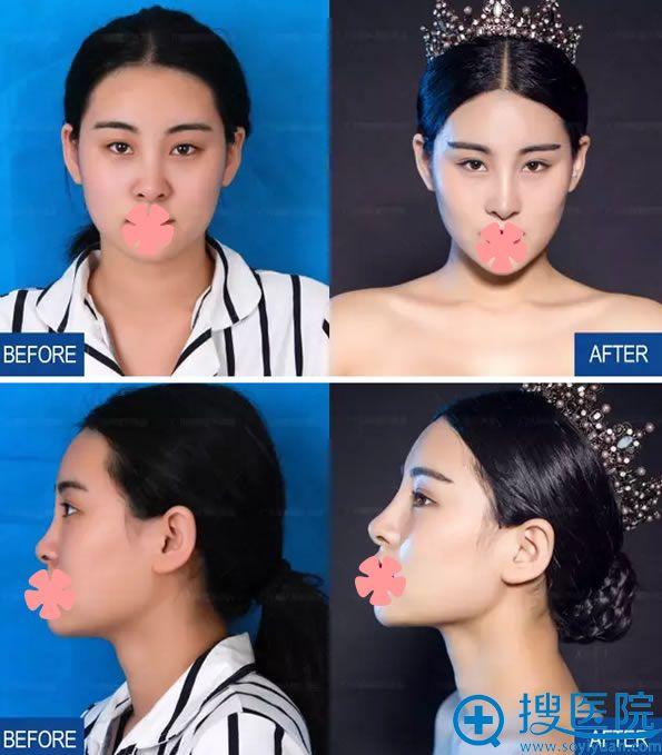 隆鼻失败修复案例及前后对比效果