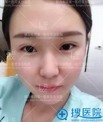 吴焱秋做的双眼皮修复7天图片