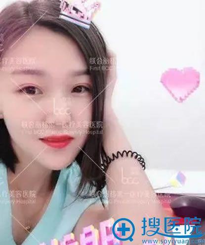 联合丽格吴焱秋修复双眼皮30天效果