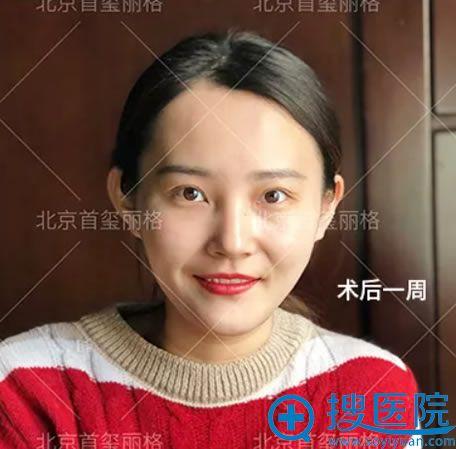 首垄丽格刘志华双眼皮修复案例