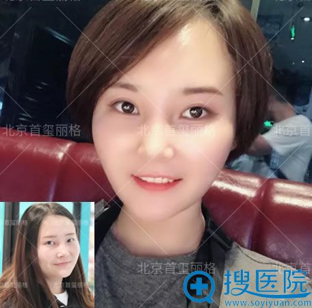 北京刘志华双眼皮修复案例半年效果