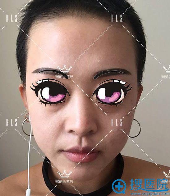 做自体脂肪填充全脸手术前