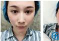 讲述我去上海港华医院找罗文婷院长做隆鼻和自体脂肪填充的经历
