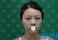 小美女在南宁韩成做假体+耳软骨垫鼻尖综合隆鼻术后真实反馈
