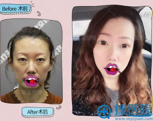 北京首玺丽格祛眼袋案例对比图