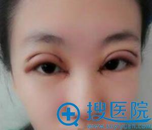 做完开眼角和双眼皮手术2天效果