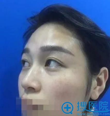 去丽都做双眼皮和鼻综合手术前