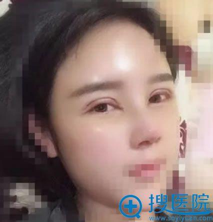 在北京丽都做双眼皮和鼻综合7天效果