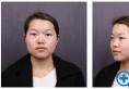 做双眼皮前我对比了上海华美和艺星整形医院后来找张朋做的手术