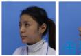 看了济南海峡和美莱的案例后找赵广生院长做的耳软骨复合隆鼻