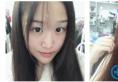 上海美莱做双眼皮怎么样?看吴海龙医生双眼皮案例效果让你惊艳