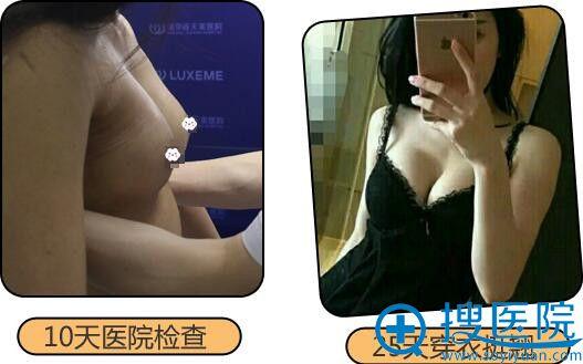 不想假体隆胸到南京连天美自体脂肪隆胸案例