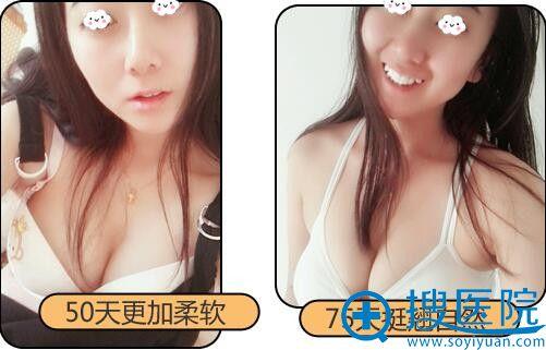 南京连天美自体脂肪丰胸效果